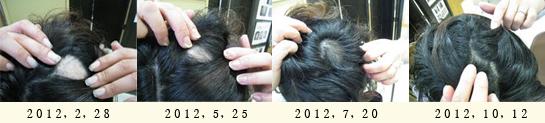 円形脱毛がきれいに治りました